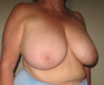 Breast Reduction - Case 104 - Before