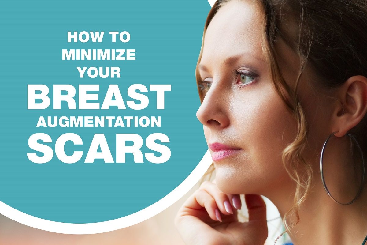 How to Minimize Your Breast Augmentation Scars [Infographic]